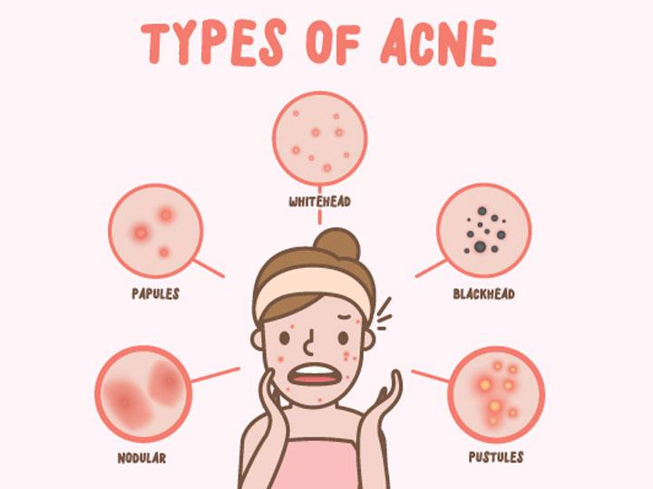 Acne – Types of Acne and What to Do About It