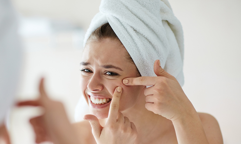 How to Effectively Treat Acne on Your Body
