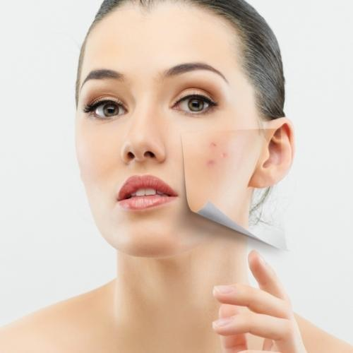 Acne and the Pimple: How to Treat It Without Using Expensive Medications