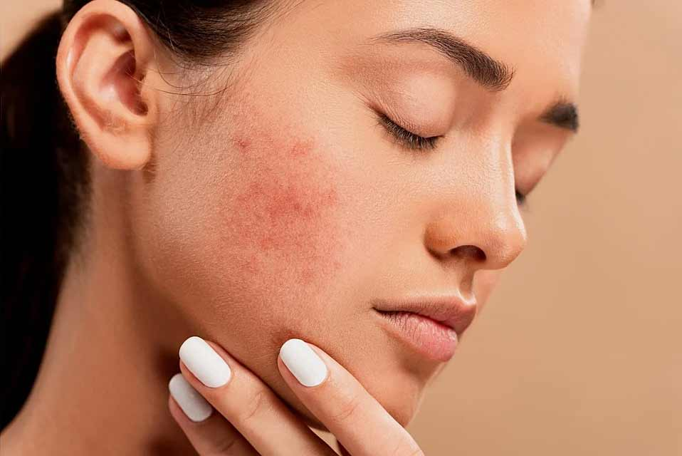 Acne Treatments – Prescription Medications and Topical Ointments