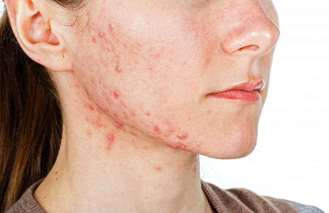 Main Causes Of Acne