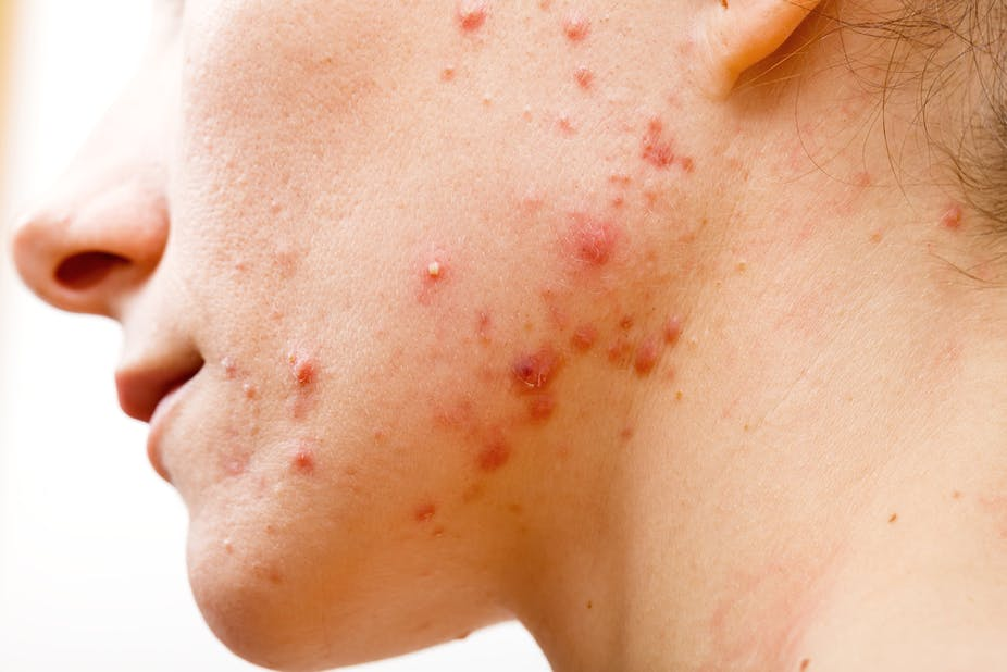 Acne Treatment by Physician Assistants